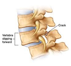 Natural Treatment for Spondylolisthesis
