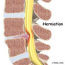 Steroid Injections for Sciatic Pain