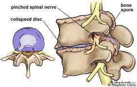 Lumbar Degenerative Disc Treatment