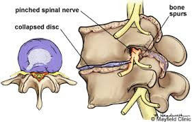 Lumbar Degenerative Discs and Lower Back Pain