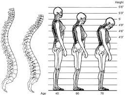 Spinal joint motion and your posture