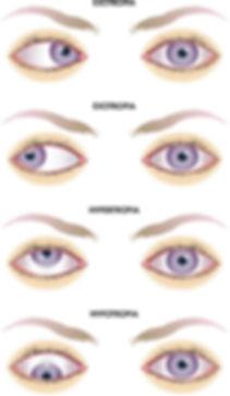 奈良,メガネ,斜位,斜視,外斜位,内斜位,上斜位,間欠性斜視