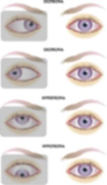 奈良,メガネ,斜位,斜視,外斜位,内斜位,上斜位,間欠性斜視,隠れ斜視,プリズム補正,プリズム,プリズムメガネ