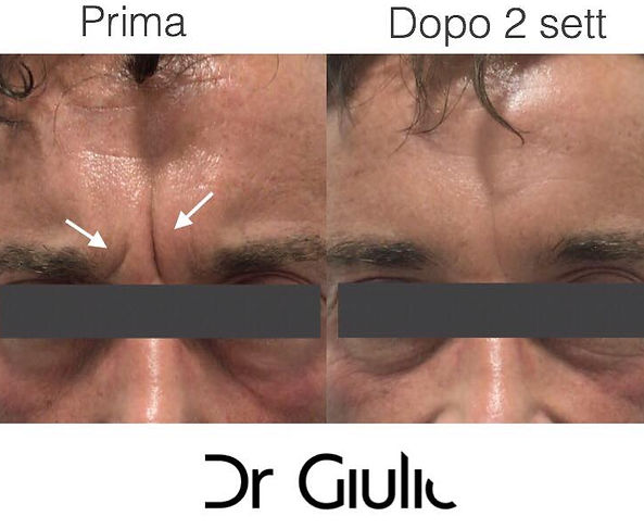 Botox fronte