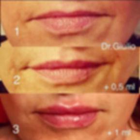 ingrandimento labbra