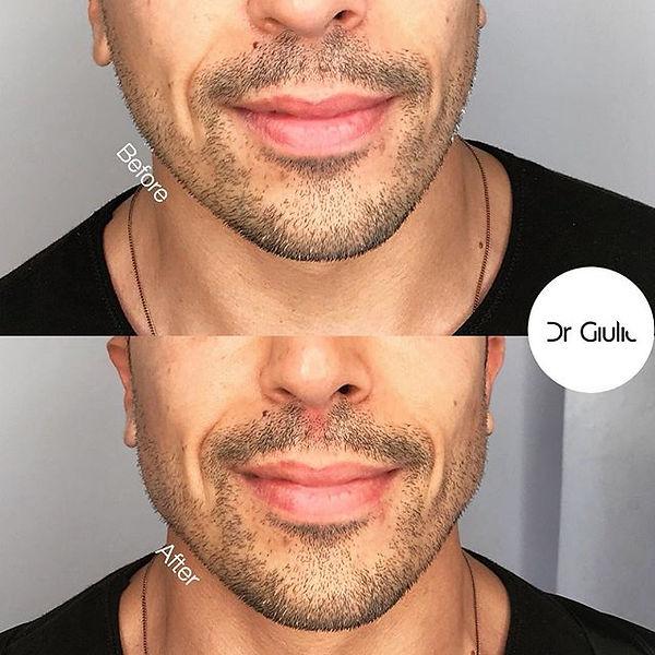 filler mandibola