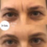 Botox rughe