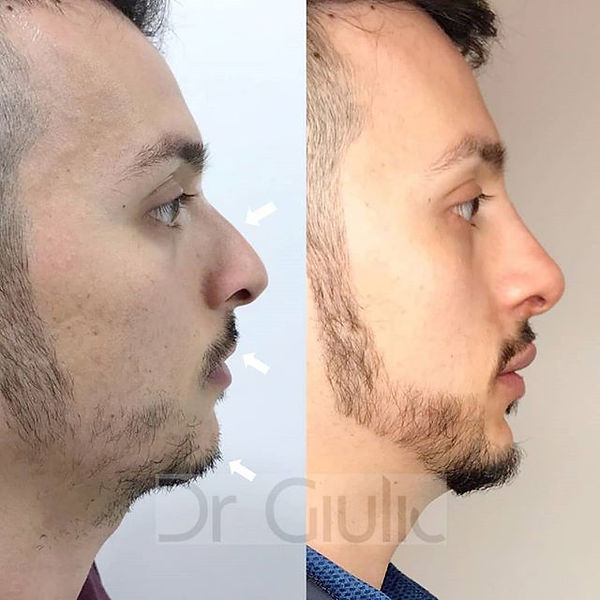 Filler is the secret ✨👨‍⚕️💉 2017 vs 20