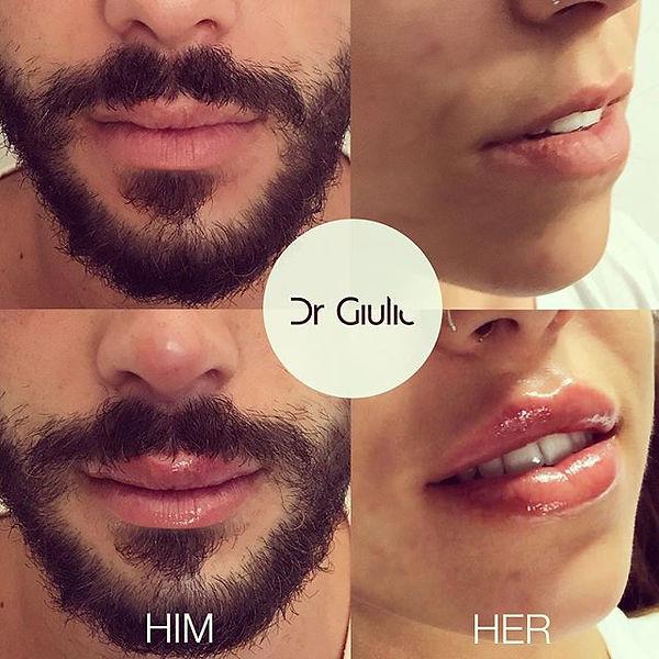 Filler Labbra uomo