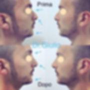 filler naso e mento