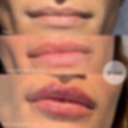 filler labbra lip filler