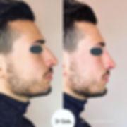 Challenging Rinofiller Case💉👃Same nose