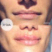correzione filler labbra