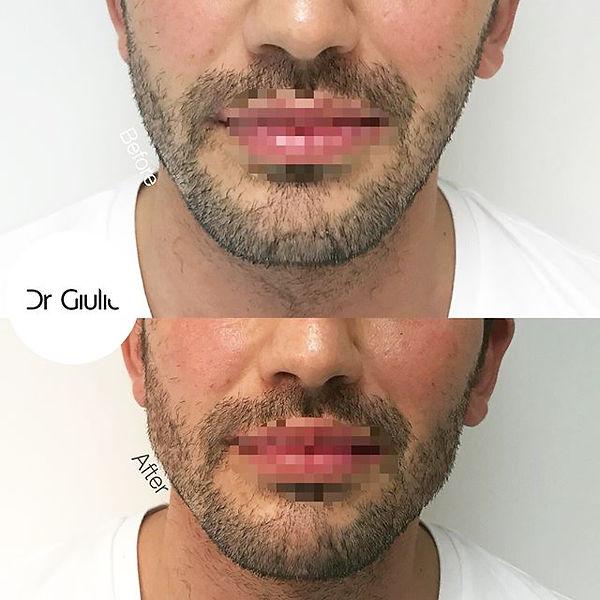 filler angolo mandibolare