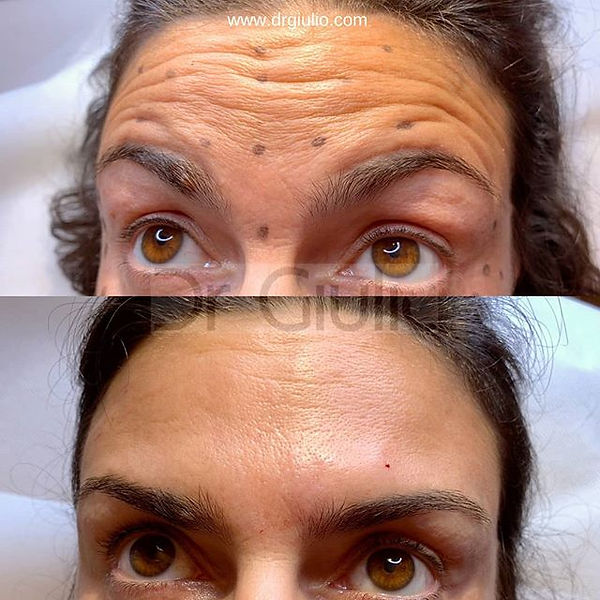 ✨Botox is Magic✨_. _Ecco il risultato do