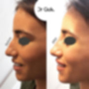 PROFILE BEAUTIFICATION by _dr.jpe