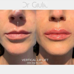 💉⬆️Vertical Lip Lift⬆️💉