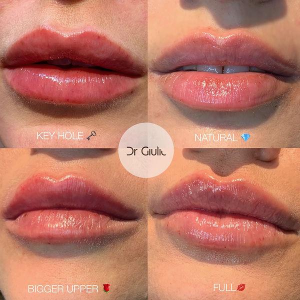 Filler labbra 👄