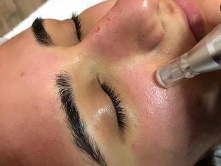 Comment se débarrasser des cicatrices d'acné
