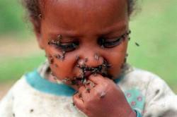 trachoma-baby-endtheneglect-dot-org.jpg