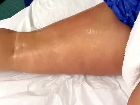 The Perfect Cellulite Remedy: Lymphatic Massages!