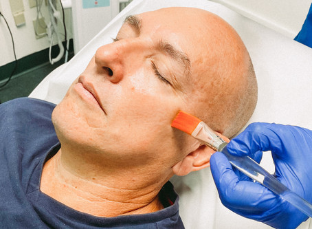 Platelet Rich Plasma Facial Benefits