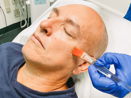 Platelet Rich Plasma Facial Benefits