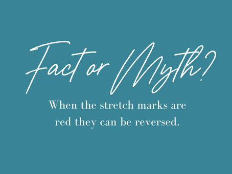 Truth or Myth: When stretch marks are red, they can be reversed.