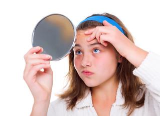 Acne: A culpa é dos hormônios?