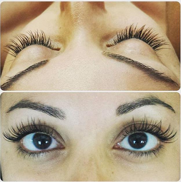 Eye Esthetics Toronto Raising Eyebrows
