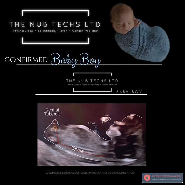 nub theory at 12 weeks boy