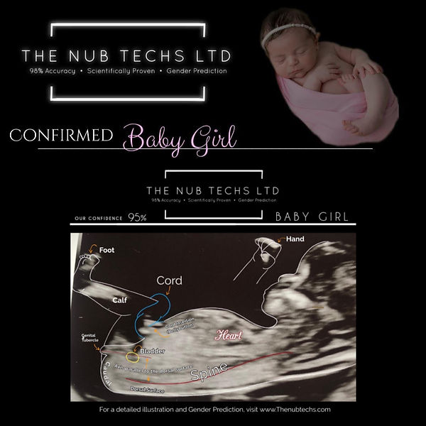 nub theory shows a baby girl