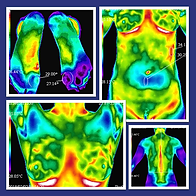 thermography-image-collage-3.png