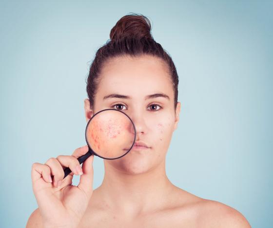 Bodhi Tree TCM treatment for Acne