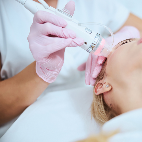 Microneedling, PRP + Acupuncture