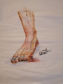 little toe goes OOF