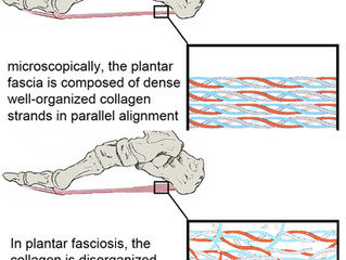 Plantar Fasciitis vs. Plantar Fasciosis - What's the Difference?