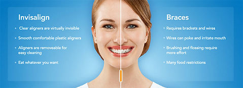 Invisalign, invisible teeth braces