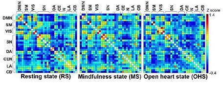 MRI-resting-mindfulness-open-heart-state