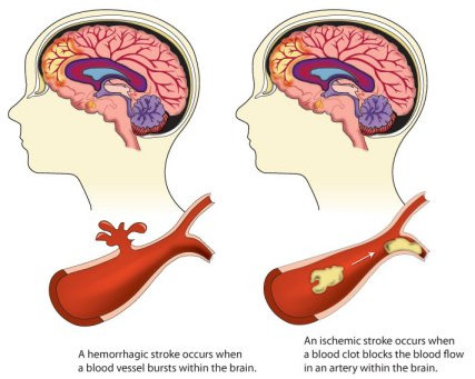 Stroke- Is there LIFE after stroke?
