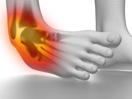 Ankle Sprains, Cure, and Physiotherapy