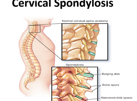 Cervival Spondylosis - Solution and Treatment