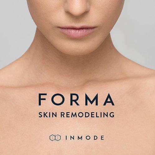 Forma RF Treatment
