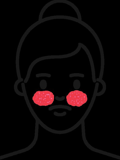 Treatment Protocols - Rosacea