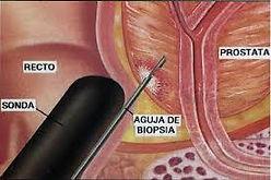 biopsia prostatica, sexologia