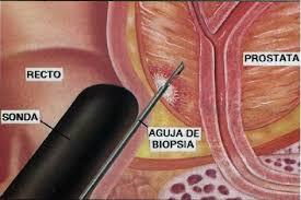 Programa Permanente de Prevención y Control del Cáncer de Próstata