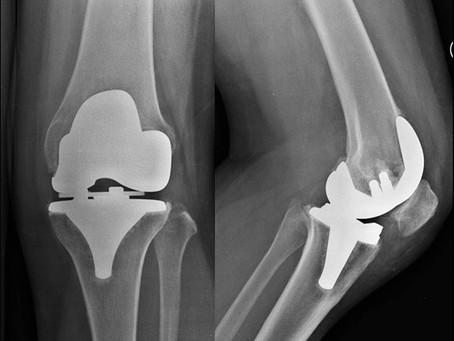 Artroprotesi totale di ginocchio