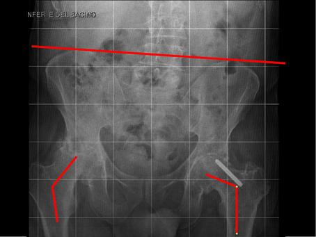 Artroprotesi bilaterale delle anche. Caso 1