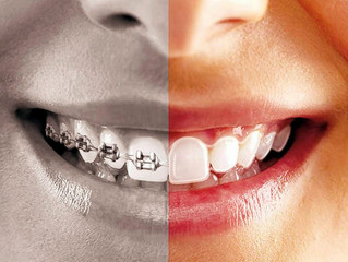 Braces vs Invisalign, which one is good for you