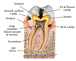 What happens if you leave a deep cavity in your mouth?
